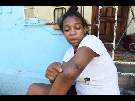 Antoinette Montague shows where she was shot in the left arm. She said that life has been difficult since the injury.